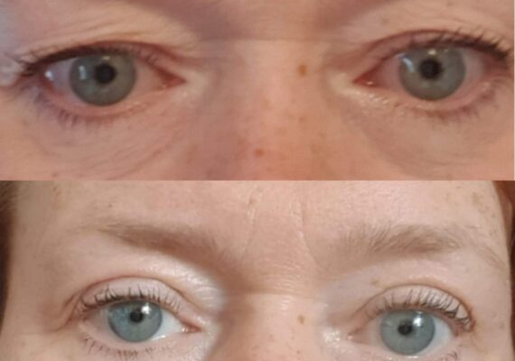 skinliftPRO øyelokksløft
