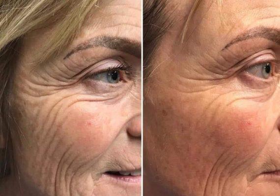 behandlinger ansikts massasje