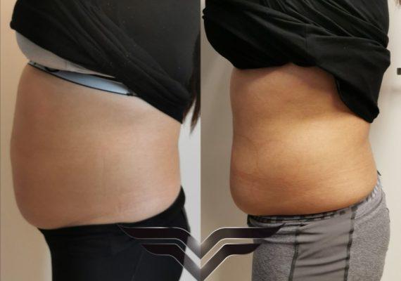 behandlinger cavi lipo fettfjerning ned i vekt figurforming